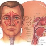 Homeopathy has a cure for your Sinusitis