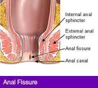 Anal fissure specialist
