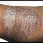Eczema and its Homeopathic treatment by Dr Harsh Sharma
