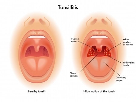 Tonsillitis-Homeopathic Docor-Chandigarh-Mohali