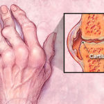 Homeopathy can cure Rheumatoid Arthritis