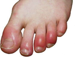 Best Homeopathic medicines for Chilblains