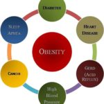 Obesity, causes, complications and prevention