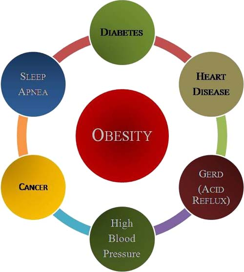 Obesity and its effects