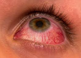 5 best Homeopathic Medicines for Allergic Conjunctivitis