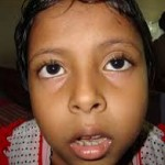 Adenoid Facies is the facial appearance that occurs with adenoid hypertrophy in children