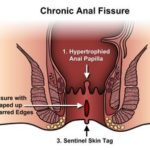 Anal Fissure and its homeopathic treatment
