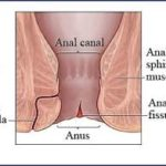 Homeopathy for anal fistula