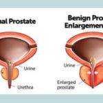 Homeopathic medicines for prostate gland enlargement
