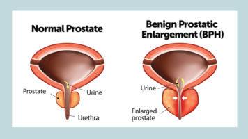5 best Homeopathic medicines for Prostate Gland Enlargement