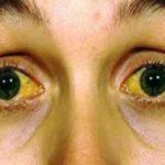 Jaundice 5 Best Homeopathic medicines