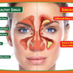 Chronic Sinusitis – best homeopathic medicines for sinusitis