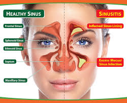 5 Best Homeopathic medicines for Chronic Sinusitis