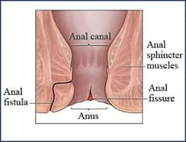 Homeopathic treatment of anal fistula or fistula in ano is very successful. Here are the best homeopathic medicines for anal fistula