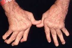 Homeopathic treatment of Rheumatoid Arthritis or Homeopathic remedies for Rheumatoid Arthritis