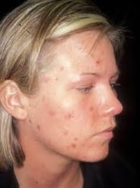 Homeopathic medicines for Acne