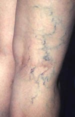 5 best Homeopathic medicines for varicose veins