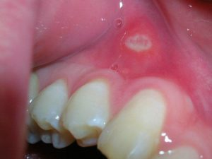 Homeopathic medicines for mouth ulcers
