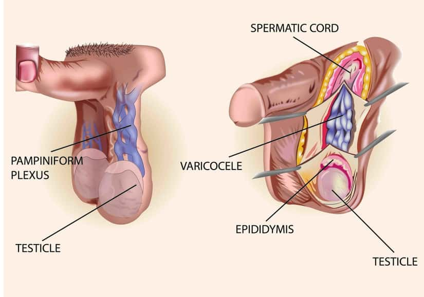 5 best homeopathic medicines for varicocele that help avoid