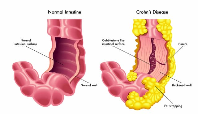Here are the 5 best Homeopathic medicines for Crohn's Disease
