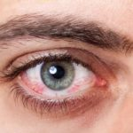 Homeopathic medicines for Dry Eyes