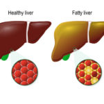 Homeopathic medicines for fatty liver are very effective and can cure the problem completely.